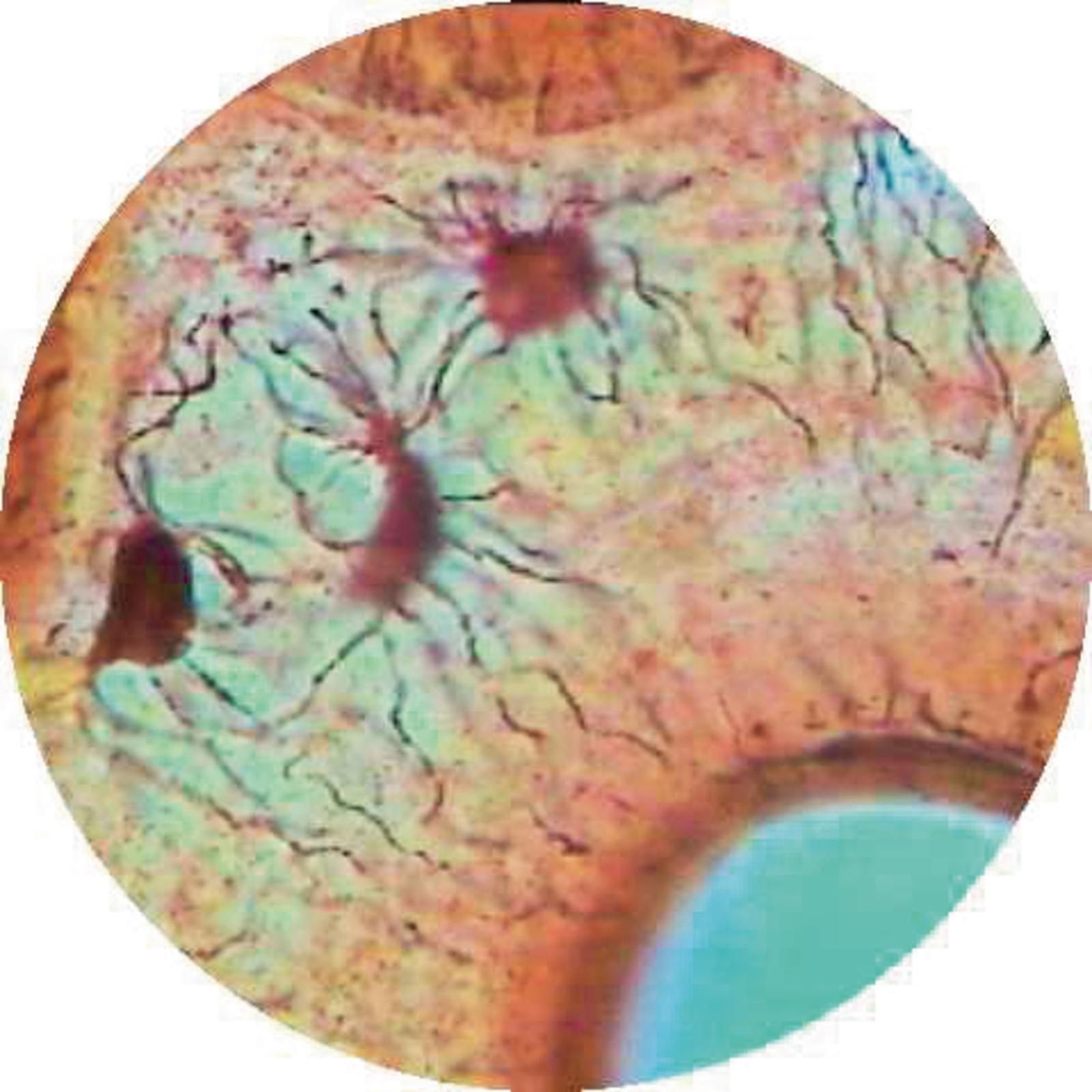 Tendon Ls White Fibrous Connective Tissue Gls Educational Supplies