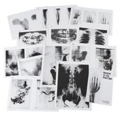 Human X-Ray Print Set - A3