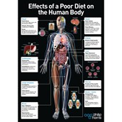 Effects of a Poor Diet On the Body Poster
